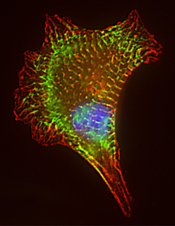 Cardiomyocyte transfected with GFP and immunostained to show location of PDZ-ZM alpha-actinin.  Credit:  A.J.Wilson/Jenny Fordham/Pauline Bennett shortlisted for British Heart Foundation 'Reflections of Research' prize in 2007.