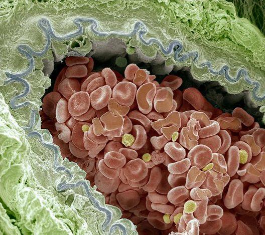 Elastic Artery Cross-section, Sem.  Credit: Steve Gschmeissner.