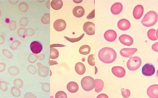 Drug represents first potential treatment for common anemia - healthinnovations