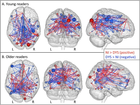 """Whole-brain connectivity differences between groups. Three-dimensional representation of the nonimpaired readers (NI) > dyslexic readers (DYS) (""""NI"""") and DYS > NI (""""DYS"""") edge components (p < .01 after network-based statistic correction) in young readers (A) and older readers (B). Red lines denote the NI network; blue lines denote the DYS network. These components were thresholded for scarcity to show nodes with a sum of edges differences ≥ 15 in younger readers and ≥ 10 in older readers along with all the nodes to which these suprathreshold nodes were connected, representing approximately 1% of the total number of edges in both age groups. Spheres are placed at the centroid of each node and are scaled and coloured according to their numbers of edges in the NI and DYS networks (i.e., large red nodes have many more NI edges than DYS edges, and vice versa for large blue nodes). Note that all figures are shown in neurological convention (subject-left is image-left): axial views are top-down, and coronal views are from the posterior. L, left; R, right.  Finn et al 2014."""