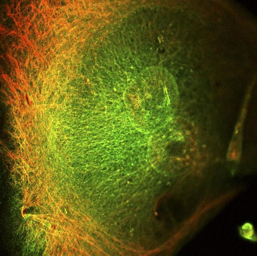 Breast cancer cell. [Lorna McInroy, Wellcome Images]