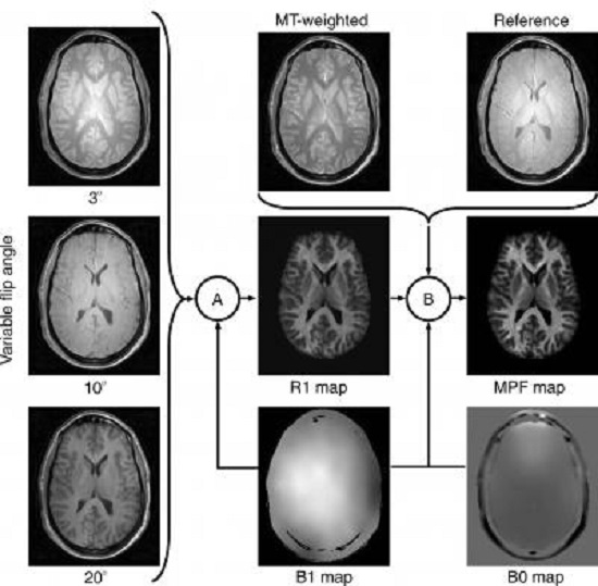 The scheme demonstrating how an MPF map is computed from source MR images. Imaging protocol includes three gradient-echo images with variable flip angles, a gradient-echo image with off-resonance radiofrequency saturation enabling the magnetization transfer effect (MT-weighted image), and a reference image that is a similar gradient-echo image obtained without saturation. Additionally, an MR imager produces maps of the main magnetic field (B0) and radiofrequency field (B1), which are used to correct errors caused by imperfectness of imager's hardware. MPF maps are computed voxel-by-voxel in two steps, (A) and (B), using special software developed by the authors. During the first step (A), a map of the longitudinal relaxation rate (R1) is generated as described in the literature. This map along with an MT-weighted image and a reference image are used to compute an MPF map in the second step (B) based on an iterative algorithm recently described by the authors.  Credit: Radiological Society of North America.