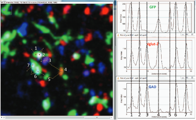 Good signal to noise resolution and independence of channels in confocal images of immunohistochemistry for GFP, Vglut2, and GAD. Left, confocal image of thin section of LHb immuno-labelled for indicated proteins. Right, plot of pixel intensities along line (indicated in image) for indicated proteins. Dashed lines placed to indicate co-localization of peak intensities.  Numbers on image correspond to peaks along line also indicated in plot.  White indicates expression of all three proteins.  Note some structures lack GFP (3rd line), lack GAD (4th line) or lack Vglut2 and GAD (5th line).  Shabel et al 2014.