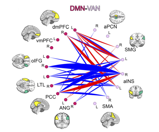 Maturational lag in Default Mode Network (DMN) connections with the Ventral Attention Network (VAN) using effect of age estimates derived from the ABIDE sample.  Circle graph displays the interregion distribution of the lagged connections shown in the scatter plot; the width of an arc linking two subregions represents the proportion of lagged connections linking those two regions.  This circle graph shows lagged segregation between anterior insula in VAN and Posterior Cingulate Cortex (PCC) in DMN.