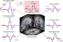 featured image - EEG Test to Help Understand and Treat Schizophrenia - neuroinnovations