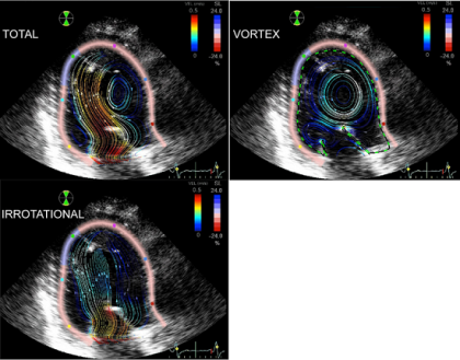 featured image - Engineers develop novel ultrasound technology to screen for heart conditions - healthinnovations