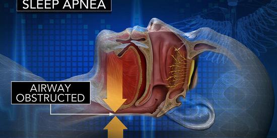 featured -image - Treating sleep apnea in cardiac patients reduces hospital readmission - healthinnovations