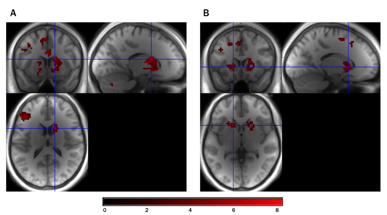 Whole-brain analyses for curiosity-related activation based on parametric modulation analyses.  (A)Peak activation is shown for the right striatum cluster (MNI:x = 15,y = 9,z = 15) and (B) for the left striatum cluster (MNI:x = -15, y = 15,z = 0) based on a cluster threshold of p <0.05.  States of curiosity modulate hippocampus-dependent learning via the dopaminergic circuit.  Gruber et al 2014.