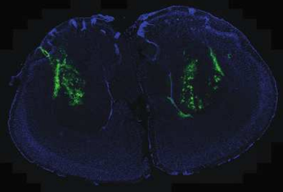 AAV-GFP expression in the striatum of a TSC1 flox/+/HD mouse.  Immunofluorescence image showing adeno-associated virus (AAV)-GFP microinjection (GFP flourescence) that covered 40-60% of the striatum. Image is representative of 5 to 7 mice per group.  Huntingtin promotes mTORC1 signaling in the pathogenesis of Huntington's disease.  Subramaniam et al 2014.