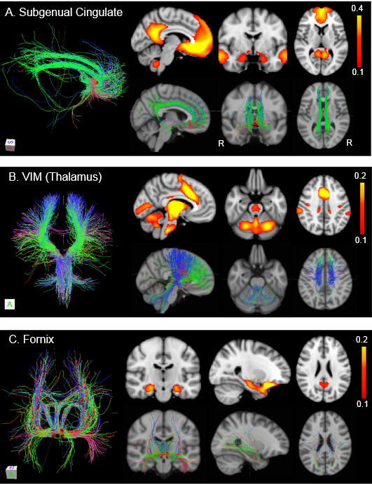 Correspondence between anatomical and functional connectivity. Diffusion-based tractography was performed using a group-connectivity dataset from 20 normal subjects. Anatomical connectivity with DBS sites in the subgenual cingulate (A), the VIM nucleus of the thalamus (B),  and the fornix (C) was computed. These three DBS targets were selected because prior studies have linked anatomical connectivity with each of these DBS sites to therapeutic response. For each DBS target, we display diffusion tractography (Left), resting-state functional connectivity from the main text (Right, Upper Row), and diffusion tractography overlaid on a reference brain (Right,Lower Row). (A) The subgenual cingulate shows anatomical and functional connectivity to the medial prefrontal cortex, amygdala, and posterior cingulate. (B) The VIM nucleus shows anatomical and functional connectivity to the cerebellum and motor regions (SMA and premotor cortex). (C) The fornix shows anatomical and functional connectivity to the hippocampus and retrosplenial cortex. MNI coordinates of displayed brain slices are, x = −6, y = −4, z = 28 (A); (x = −6, z = −24, z = 38 (B); and y = −18, x = 26, z = 24 (C).  R, right.  Resting-state networks link invasive and noninvasive brain stimulation across diverse psychiatric and neurological diseases.  Pascual-Leone et al 2014.