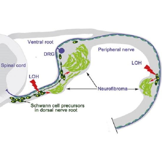Researchers identify cell-of-origin for plexiform