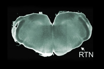 featured image - Tiny Patient Prompts Advance in Neuro-genetics - neuroinnovations
