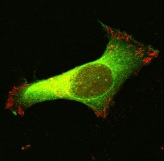 If cells can't move… cancer can't grow - healthinnovations