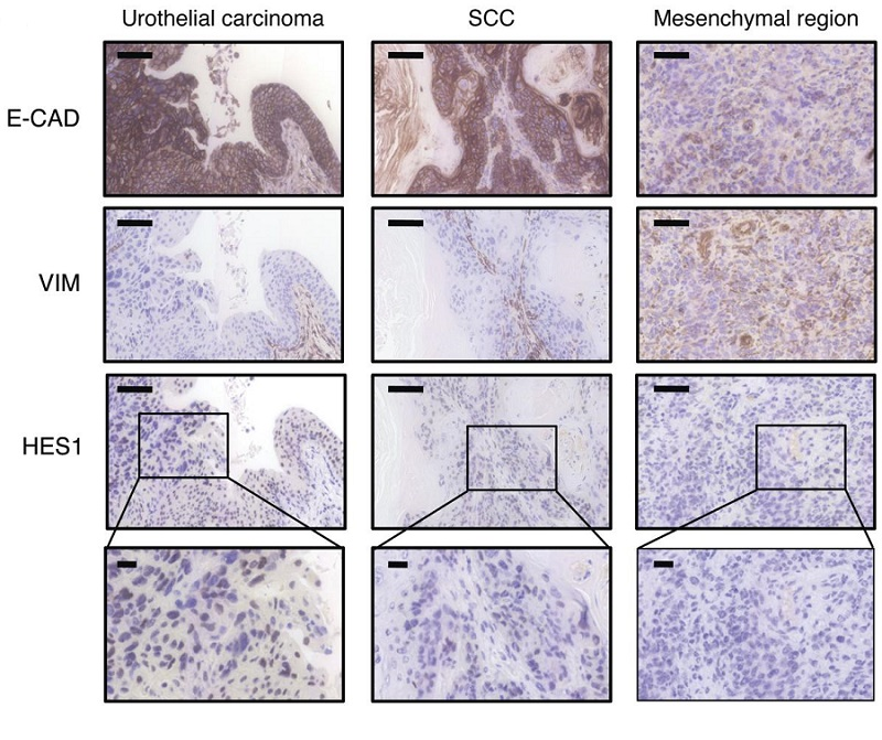 NOTCH inactivation induces the appearance of mesenchymal regions in SCCs.  Representative examples of IHC stainings against the indicated proteins on the indicated tumor subtypes and regions. Note the drastic decrease of HES1 and E-cadherin and the increase of vimentin in the mesenchymal region.  NOTCH pathway inactivation promotes bladder cancer progression.  Serrano et al 2015.