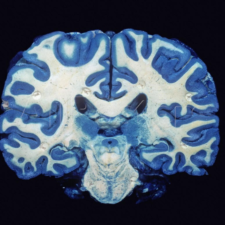 Development of Psychosis - Gray Matter Loss and the Inflamed Brain - neuroinnovations
