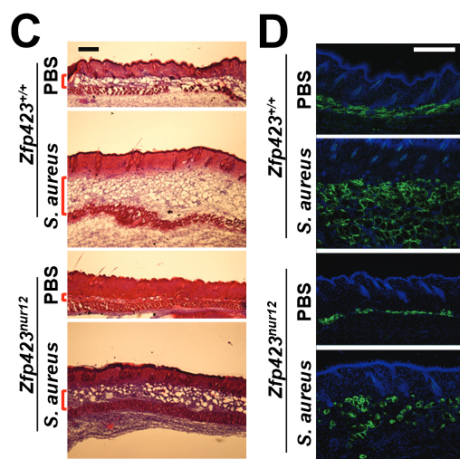 Activation of Zfp423 is essential for host defense against S. aureus infection. (C-D) Hematoxylin & eosin staining (C) or Perilipin (PLIN) immunostaining (D) in Zfp423+/+ and Zfp423 nur12 mouse skin after S. aureus or PBS (ctrl) injection (day 3).  Dermal adipocytes protect against invasive Staphylococcus aureus skin infection.  Gallo et al 2015.