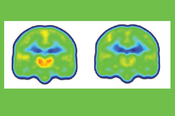 Images created by averaging PET scan data from chronic pain patients (left) and healthy controls (right) reveals higher levels of inflammation-associated translocator protein (orange/red) in the thalamus and other brain regions of chronic pain patients.  Credit: Marco Loggia/Martinos Center for Biomedical Imaging, MGH.