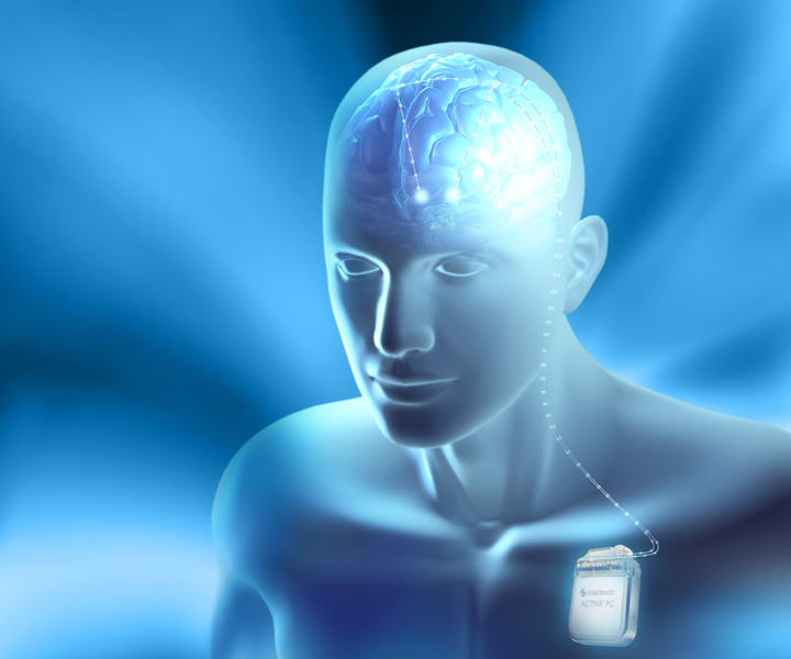 Deep brain stimulation study is the first to successfully treat ...