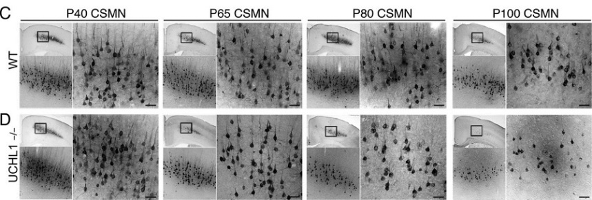Progressive CSMN degeneration in the UCHL1−/− mice.  (C and D) Representative images of matching coronal sections of WT (C) and UCHL1−/− mice (D) motor cortex, analyzed at P40, P65, P80, and P100, show progressive CSMN degeneration in UCHL1−/− mice. Boxed areas are enlarged below and to the right. Corticospinal Motor Neurons Are Susceptible to Increased ER Stress and Display Profound Degeneration in the Absence of UCHL1 Function.  Özdinler et al 2015.