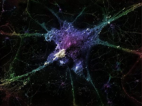 Eureka Prize 2012: Neuron with Alzheimer disease.  Photographer:  Linnea Rundgren.