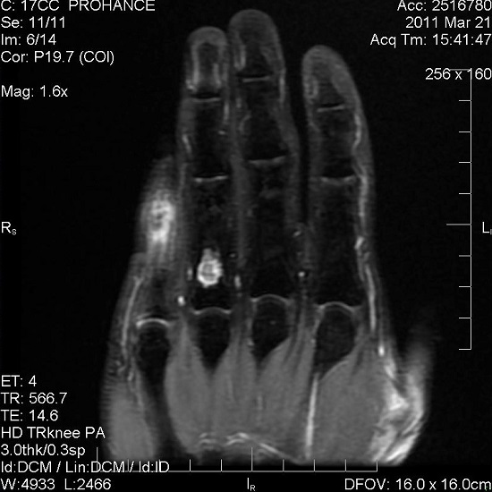 Jaras' Hand.  The MRI shows a likely enchondroma in Jaras' right ring finger. It was discovered as a small black area on his x-ray when he broke his pinky, so we went in to getter better resolution images today. The pinky looks abnormal in this view, only because it's not level with his other fingers on account of his soccer injury.   Kevin Borland Flickr 2011.