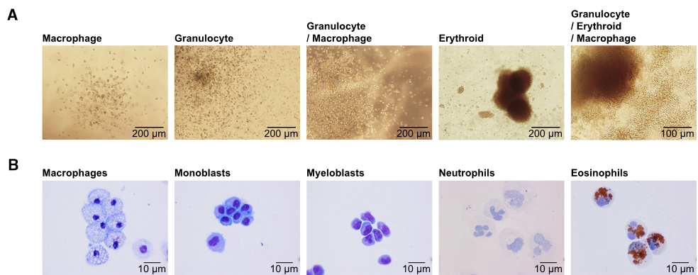 Retinoic Acid Signaling Inhibition Increases Colony-Forming Hematopoietic Progenitor Numbers.  (A) Micrographs of CFU colony types from iPSC-derived cultures (20,000 cells per sample).  (B) Cytospin pictures of various hematopoietic cell types collected from colonies and stained with May Grünwald/Giemsa staining, alternatively benzidine.  Retinoic Acid Regulates Hematopoietic Development from Human Pluripotent Stem Cells.  Woods et al 2015.