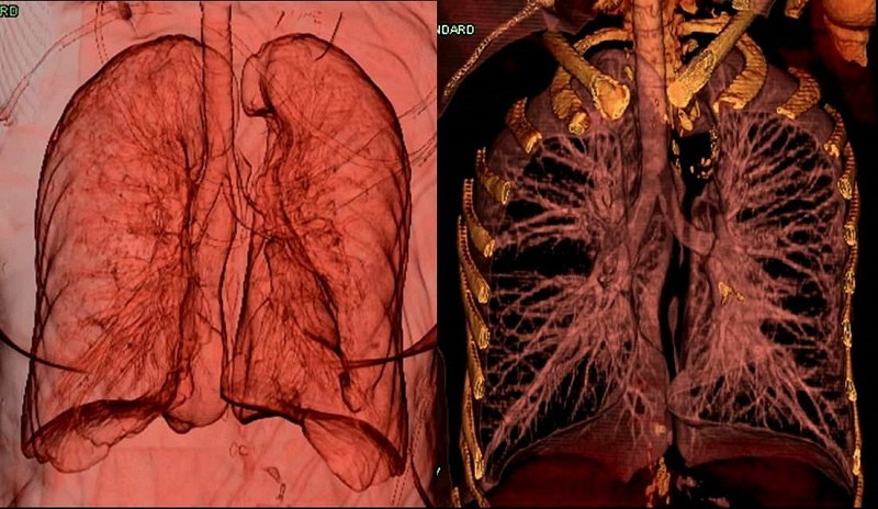 These two 3D CT volume rendered images show the vast distribution of the bronchial-pulmonary airway. The image on the left shows the bronchial pathways in relation to the whole lungs, and on the right the lungs are diminished to amplify the bronchial tree. Notice the distribution of the airways closely follows the vascular distribution of the lungs.  All Site Content ©2004-2015 CE Essentials, LLC; All Rights Reserved.