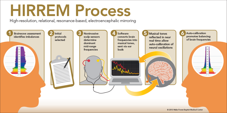 The HIRREM Process is summarized above,  High-resolution, relational, resonance-based, electroencephalic mirroring (HIRREM®), developed by Lee Gerdes and Brain State Technologies, LLC, is a noninvasive, brain feedback technology to facilitate relaxation and auto-calibration of neural oscillations by using auditory tones to reflect brain frequencies in near real time (Gerdes L, et al., Brain Behav, 2013).   Credit:  Wake Forest Baptist Medical Center 2015.