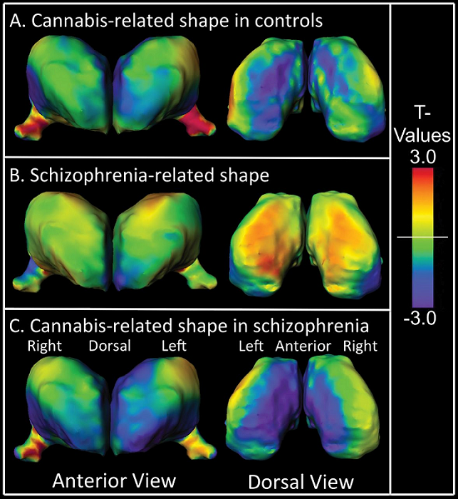 Thalamic surface shape differences. (A) Control subjects with a history of cannabis use disorder (CON-CUD) contrasted with control subjects with no history of substance use disorders (CON-Clean), (B) schizophrenia subjects with no history of substance use disorders (SCZ-Clean) contrasted with CON-Clean, (C) schizophrenia subjects with a history of cannabis use disorder (SCZ-CUD) contrasted with SCZ-Clean. T-values with cooler colors (T  0) indicate outward shape differences.  Cannabis-Related Working Memory Deficits and Associated Subcortical Morphological Differences in Healthy Individuals and Schizophrenia Subjects.  Csernansky et al 2013.