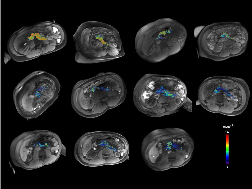 3D reconstructions of pancreata of 11 patients with T1D. A pseudocolor = ΔR2* map was fused onto a volume-rendered 3D-T1 VIBE MRI image dataset. Shown are the 11 patients with recent-onset T1D.  Noninvasive mapping of pancreatic inflammation in recent-onset type-1 diabetes patients.  Gaglia et al 2015.