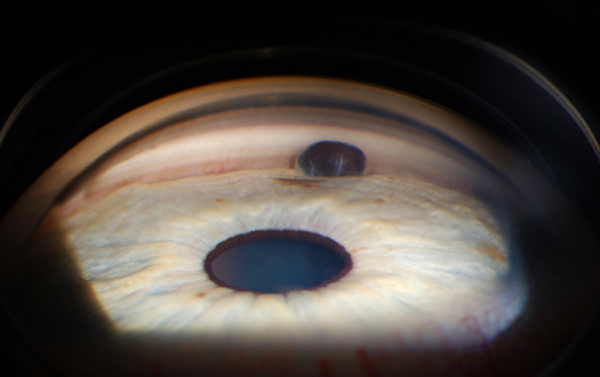 This image demonstrates an iris tumor/malignant melanoma that is sitting in the angle.  Photograph was made by James Gilman of the Moran Eye Center using a Goldmann 3-mirror lens scatter illumination with a Zeiss photo slitlamp and a Nikon D-1X camera.