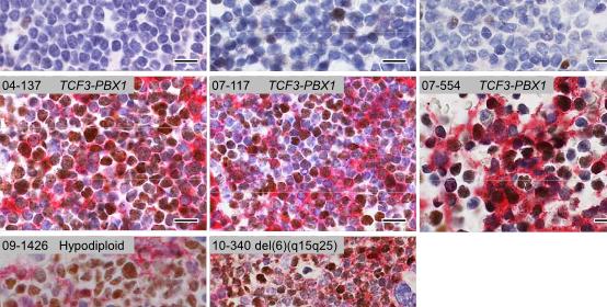 featured image - Childhood leukemia study reveals disease subtypes, new treatment option - healthinnovations