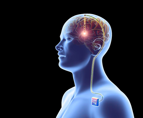 featured image Long-term effect of deep brain stimulation on pain in patients with Parkinson's disease