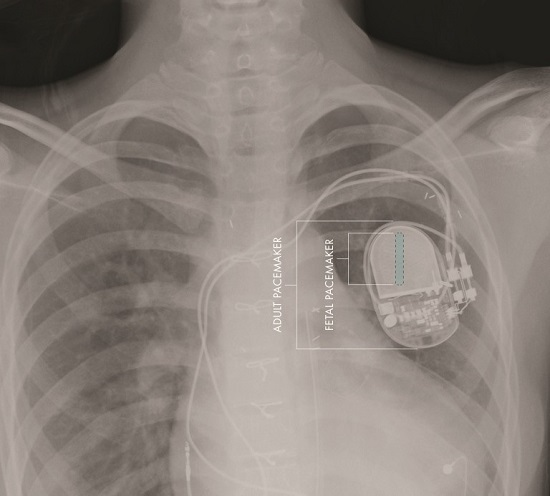 Comparative sizes of fetal and adult pacemakers.  Credit: Image courtesy of Children's Hospital Los Angeles Saban Research Institute.