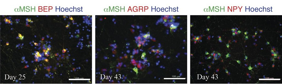 Efficient generation of hypothalamic ARC-like neurons from iPSCs generated from BBS obese subjects.  Immunostaining of day-25 and day-43 iPSC-derived neurons. Scale bars: 100 μm.  Differentiation of hypothalamic-like neurons from human pluripotent stem cells.  Leibel et al 2015.