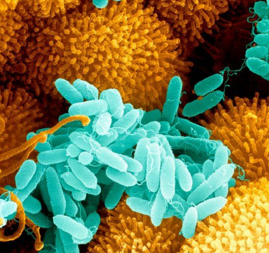 Pseudomonas aeruginosa is cultured in biofilms in the respiratory tract of patients with cystic fibrosis. Ultimately, lung infection by P. aeruginosa can lead to death.  Image Source: Science Photo Library.