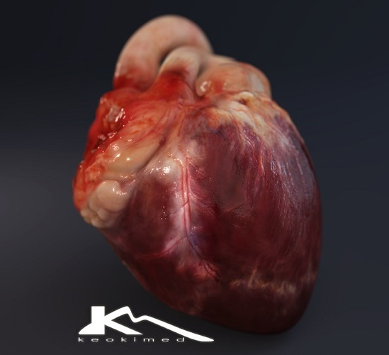 New study shows non-invasive imaging tests can detect coronary artery disease long before it strikes - healthinnovations