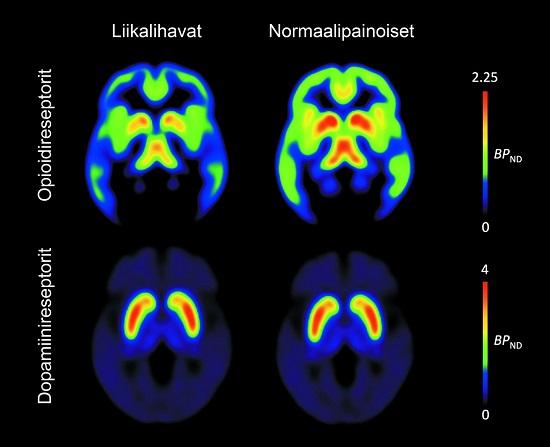 Brain Normal Function Functioning of Brain's