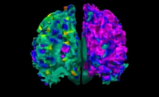Effects of polycyclic aromatic hydrocarbons (PAH) on the developing brain.  Photo credit: Saban Research Institute of Children's Hospital Los Angeles.