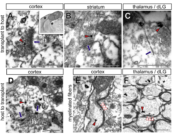 Synaptic Contacts between the Transplant and the Host Assessed by Electron Microscopy 3–4 Months after Transplantation.  (A–F) Transplant (t)-to-host (h) contacts in the (A) cortex, (B) striatum, and (C) dLG and (D) host-to-transplant contacts in the cortex. Myelin sheets surrounding the GFP+ fibers were observed in the (E) cortex and (F)dLG. Red arrowheads indicate immunogold labeling for GFP, blue arrows indicate synapses (the arrows being on the post-synaptic side), and white arrowheads indicate myelin sheets. Inset in (A) shows the location of the electron microscopy pictures (indicated by asterisks) in relation to the transplant. Scale bars, 100 nm in (A)–(C) and 500 nm in (D)–(F).  Area-Specific Reestablishment of Damaged Circuits in the Adult Cerebral Cortex by Cortical Neurons Derived from Mouse Embryonic Stem Cells.  Vanderhaeghen et al 2015.
