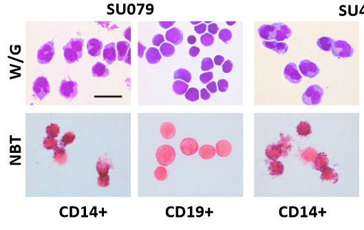Stanford scientists change human leukemia cells into harmless immune cells - healthinnovations