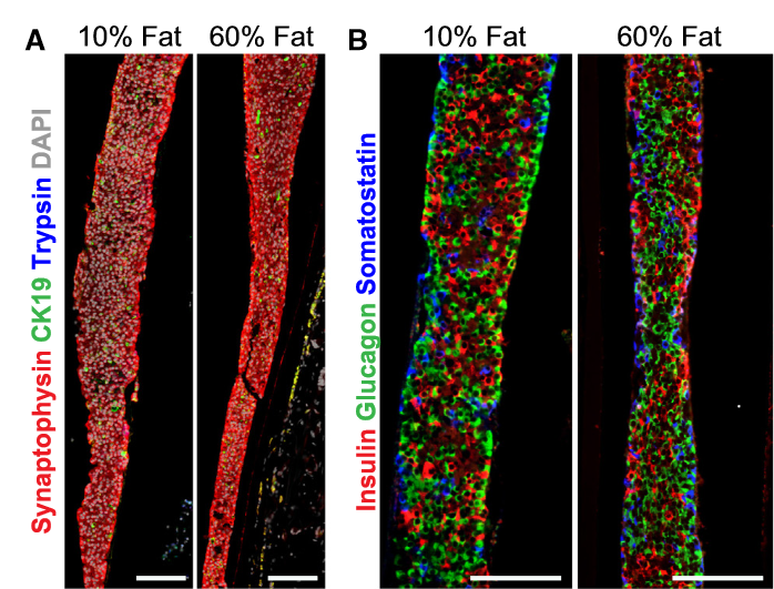 The Morphology of Macroencapsulated hESC-Derived Pancreatic Endocrine Cells Is Similar in Grafts from Mice Fed a LFD or HFD.  Representative immunofluorescent images of Theracyte devices at 29 weeks post-transplantation from mice fed 10% fat or 60% fat diets.  (A) The majority of hESC-derived cells within devices from both diet groups were endocrine cells. The expression of synaptophysin (endocrine marker, red), CK19 (ductal marker, green), trypsin (exocrine marker, blue), and DAPI (nuclear marker, white) is shown. Scale bars, 100 μm.  (B) The endocrine compartment was mainly composed of cells expressing either insulin (red, guinea pig antibody), glucagon (green, rabbit antibody), or somatostatin (blue, Ms antibody); scale bars, 100 μm. Higher-magnification images are shown in (E); scale bars, 50 μm.  Treating Diet-Induced Diabetes and Obesity with Human Embryonic Stem Cell-Derived Pancreatic Progenitor Cells and Antidiabetic Drugs.  Kieffer et al 2015.