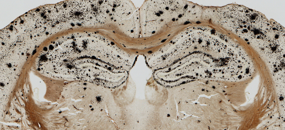 Baylor College of Medicine researchers used silver histology to reveal amyloid deposits in brain tissue from a mouse model of Alzheimer's disease. Using this model they discovered that the presence of amyloid disrupts spatial refinement of hippocampal neurons, which may contribute to difficulty with maze learning.  Zhao, Fowler, Chiang, Ji, and Jankowsky, Hippocampus (2014).