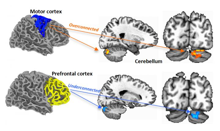 These fMRI scans show regions of over- and underconnectivity between the cerebellum and cerebral cortex in young people with autism spectrum disorder.  Credit:  SDSU Marketing and Communications.