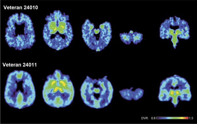 [F-18]FDDNP DVR parametric images of the brains of two war veterans with the history of multiple blast concussions (mTBIs) during their war zone deployment. The upper row shows a 48-y-old male (veteran 24010) and the lower row a 36-y-old male (veteran 24011). Left four images in each row show transaxial brain images from top of the brain to the bottom. The right image shows a coronal cut through the midbrain. Note different [F-18]FDDNP signal distribution from the patterns T1–T4 described for retired professional American football players and a pattern of lower signal in midbrain and amygdala.  In vivo characterization of chronic traumatic encephalopathy using [F-18]FDDNP PET brain imaging.  Barrio et al 2015.