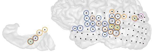 This is a 3-D image of the left brain hemisphere of a patient with tinnitus (right) and the part of that hemisphere containing primary auditory cortex (left). Black dots indicate all the sites recorded from. Colored circles indicate electrodes at which the strength of ongoing brain activity correlated with the current strength of tinnitus perceived by the patient. Different colors indicate different frequencies of brain activity (blue = low, magenta = middle, orange = high) whose strength changed alongside tinnitus. Green squares indicate sites where the interaction between these different frequencies changed alongside changes in tinnitus.  Credit:  Sedley, W et al.