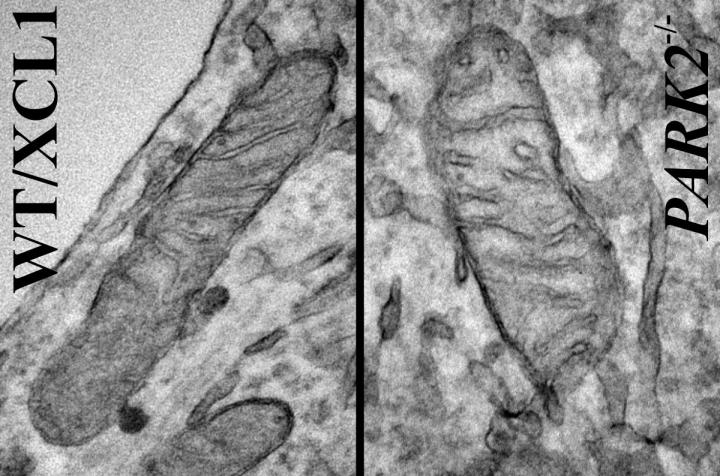 "Images are of mitochondria from iPSC-derived dopaminergic neurons. The neuron on the left is from a ""normal"" or control iPSC line; the neuron on the right was derived from the same (isogenic) iPSC line but carrying a Park2-null mutation, the most common mutation for Parkinson's disease.  Credit:  Courtesy of Akos Gerencser, PhD."