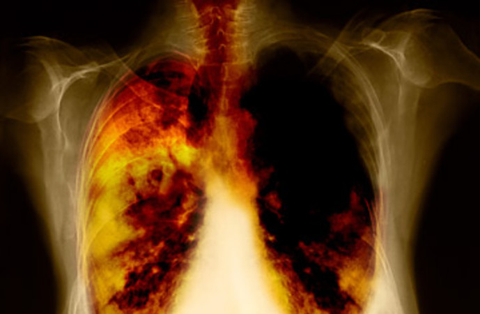 Moffitt researchers discover novel mechanism controlling lung cancer stem cell growth - healthinnovations