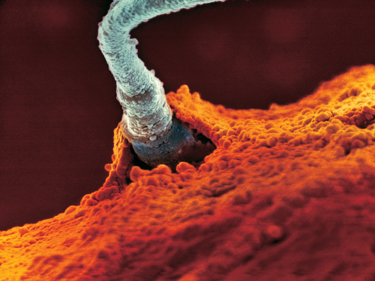 The moment of fertilization, revealed by an ultra high scanning electron microscope. In the race to reach the egg cell, up to 500,000,000 human sperm set out on the perilous journey to the Fallopian tube, which only 100 to 150 sperm survive.   Credit: Lennart Nilsson, 1990.