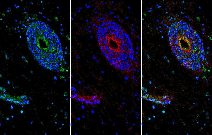 Inflammation in a multiple sclerosis lesion prompts the blood-brain barrier to enhance the expression of netrin-1 (green) to limit immune-related damage. Blood-brain barrier vessels were labeled red and cell nuclei were stained blue.  Credit:  University of Pennsylvania.